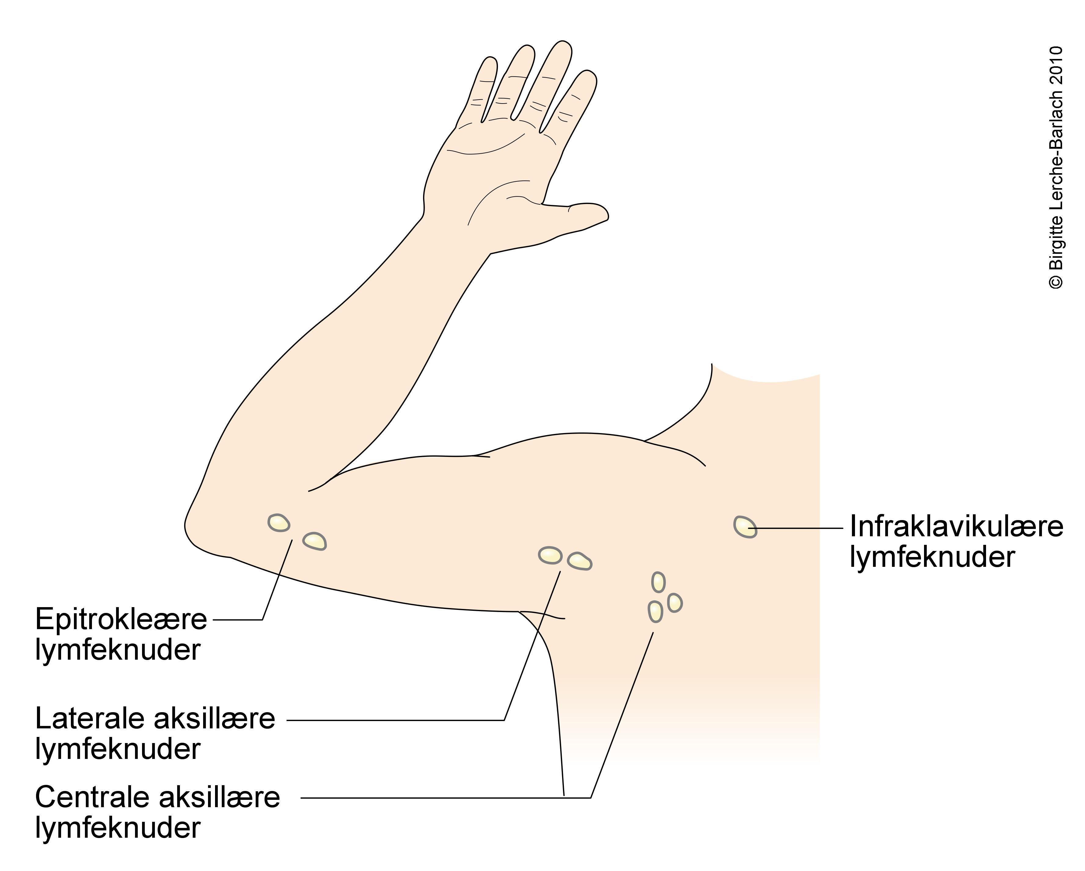 Lymfekirtler i lysken hævede Hvad forårsager