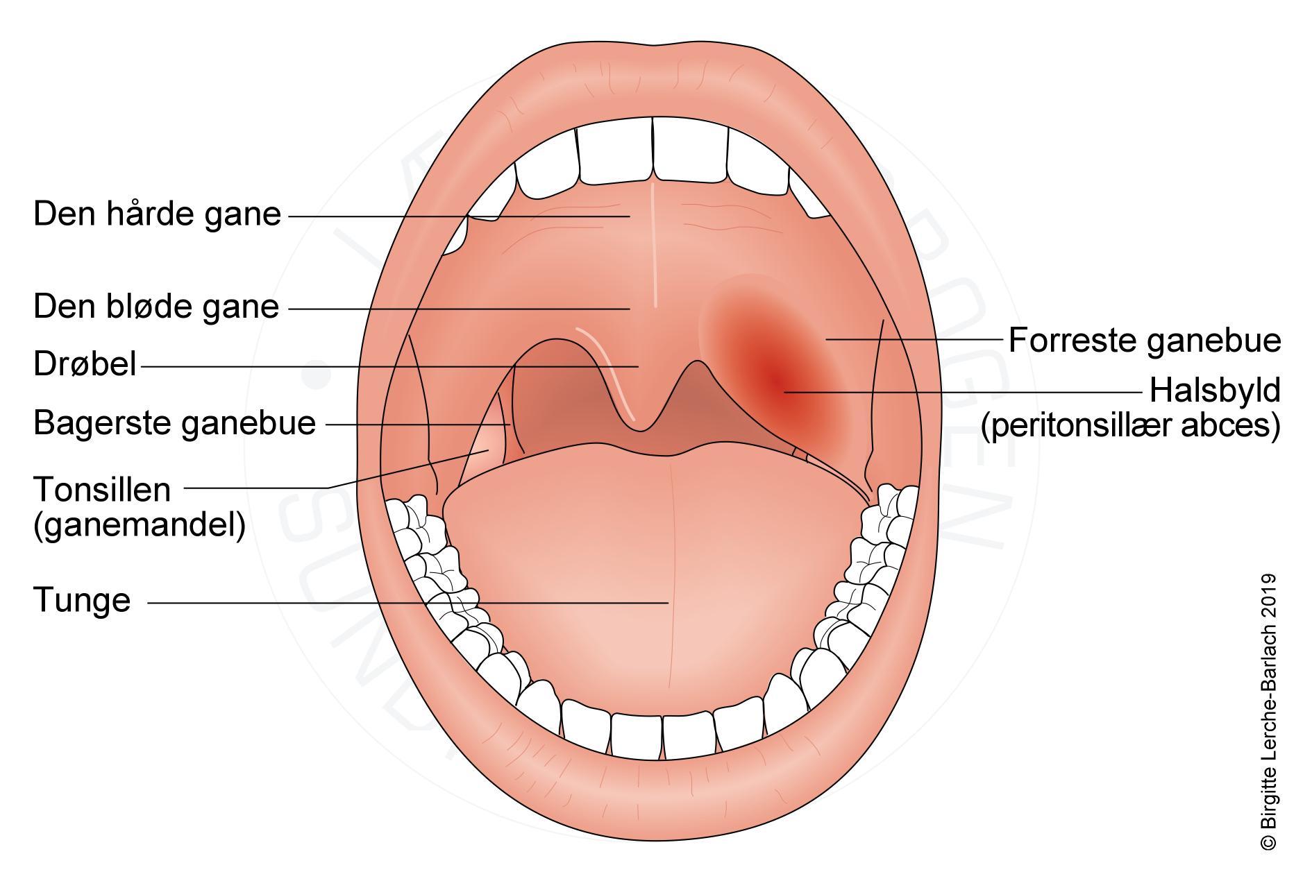 Mundhulen kræft i Kort om