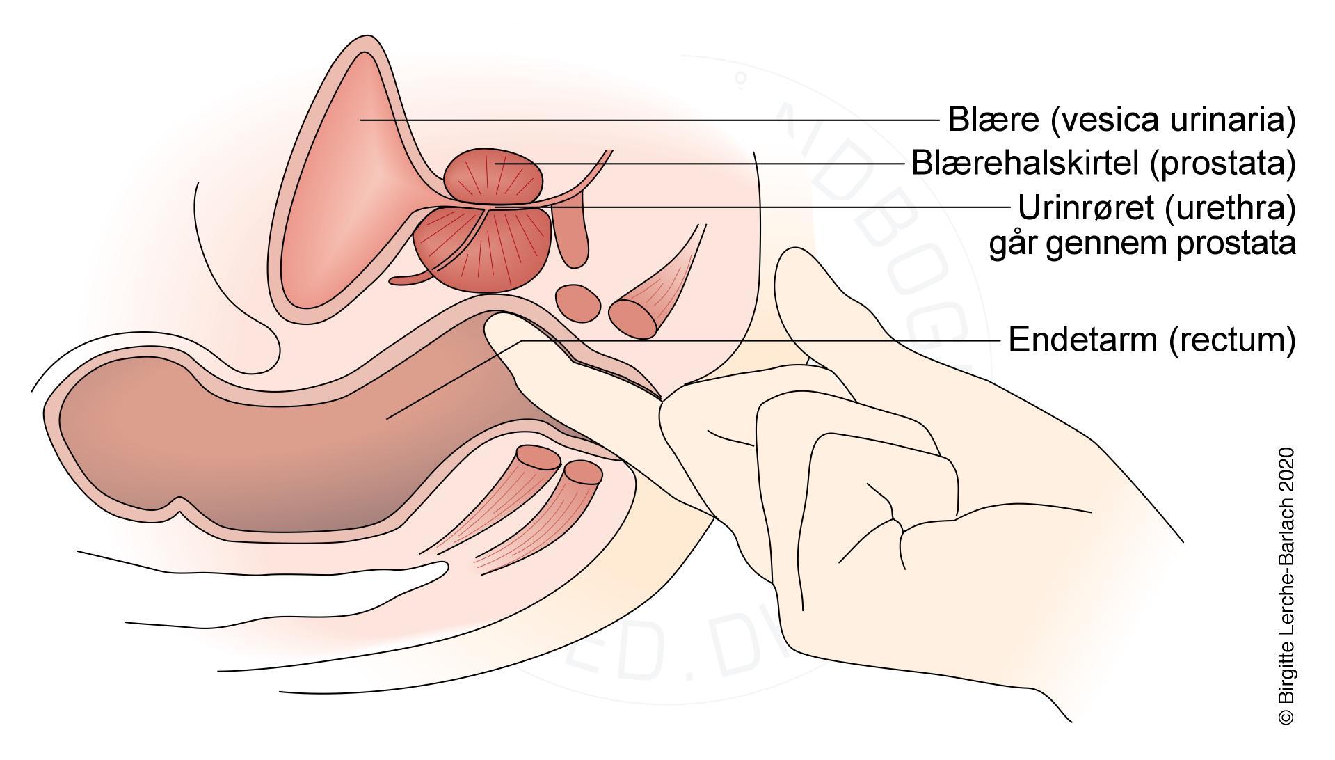 Prosztatagyulladás mit kell enni