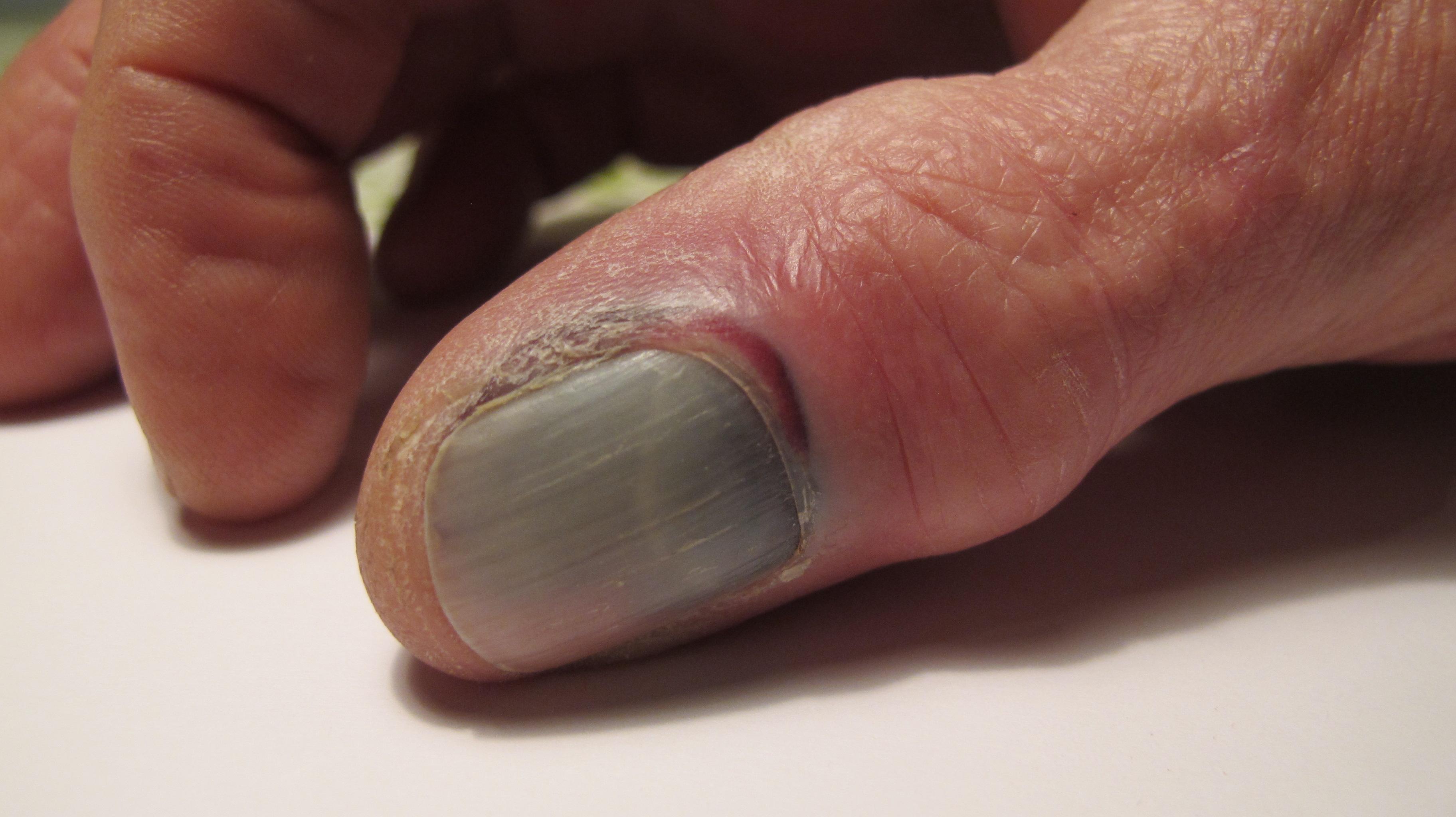 Klemt Finger Hoven