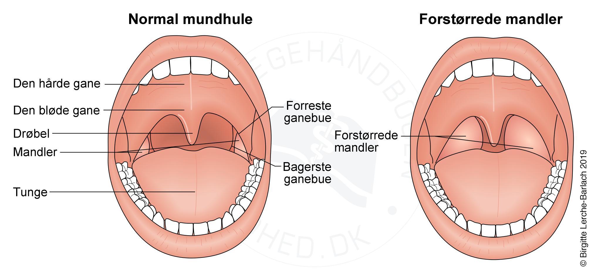 Symptomer kræft i munden Om hals