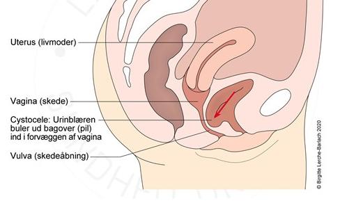 Skeden infektion i Infektioner i